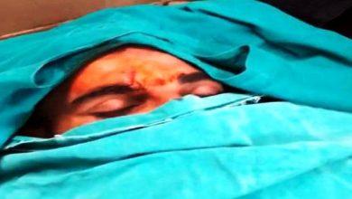 Photo of कार हादसे में मोहम्मद शमी को आई चोट, सिर में लगे टांके