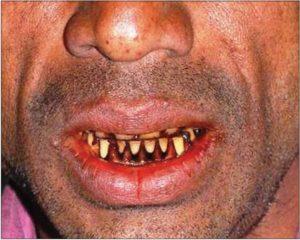 दांतों में पीड़ा झटके में भी महसूस होती है