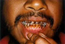 कई बार तो दातों का दर्द जबड़े तक चला जाता है
