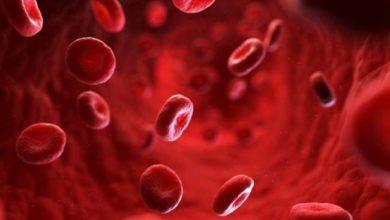 Photo of खून की कमी को न लें हल्के में, अपनाएं ये घरेलू नुस्खे