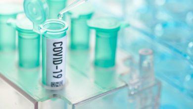 Photo of बड़ी खबर : इस भारतीय कंपनी ने बना लिया कोरोना वायरस का टीका, जल्द होगा लॉन्च