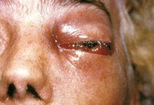 Photo of यूपी बढ़ रहा है Mucormycosis का खतरा, अबतक 76 मामले आए सामने